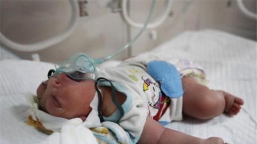 iraqi birth defects